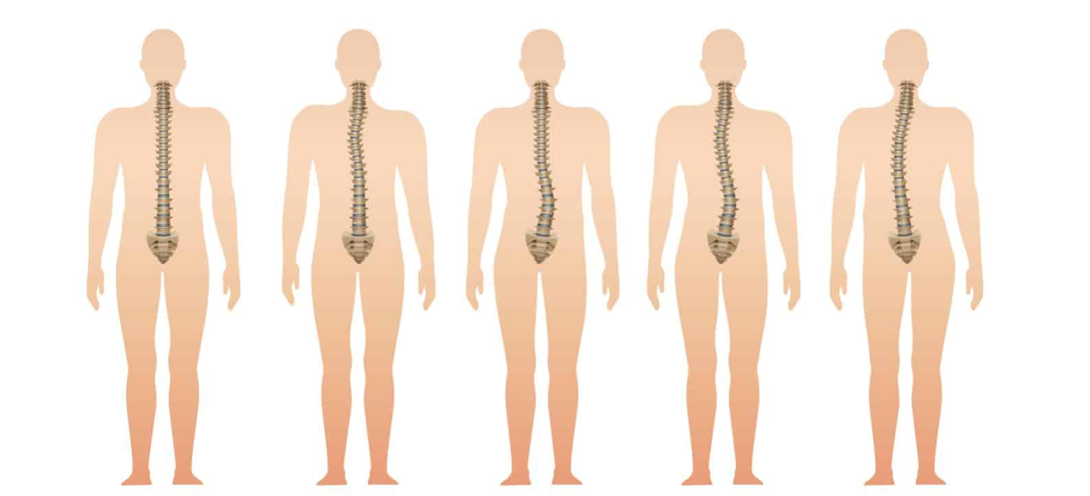 Scoliosis of spine can be helped by Pilates